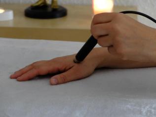 luminopuncture et acupuncture